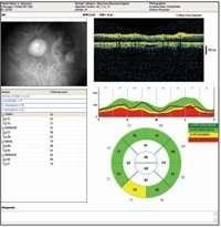 karsilastirmali-glokom-analizi