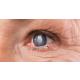 femtosaniye-ile-katarakt-tedavisi