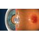 katarakt-doktoru-nasil-secilir