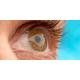 retina-dekolmani-bulgulari-ve-tipleri