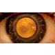 retina-dekolmaninda-tedavi-yontemleri