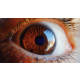 retina-yirtigi