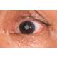 katarakt-uzerine-soylesi
