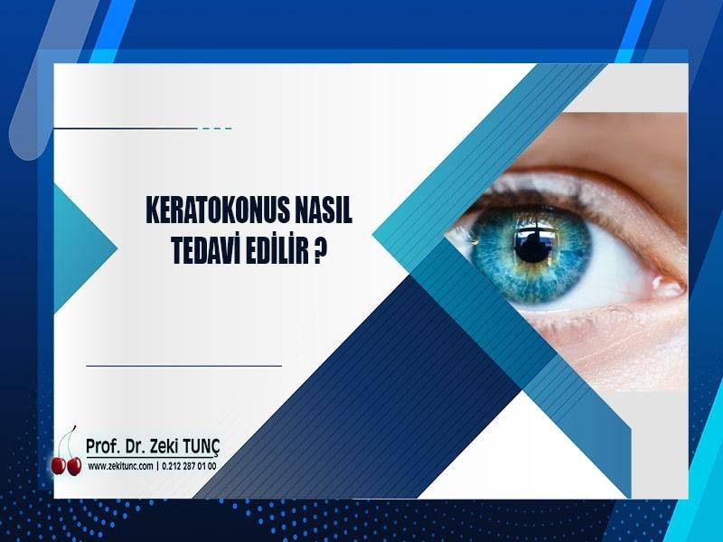 keratokonus-nasil-tedavi-edilir-prof-dr-zeki-tunc